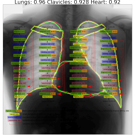 A lung X-ray, which was analyzed by an artificial intelligence algorithm.